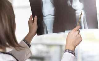 Salute: artrosi  ginocchio  salute