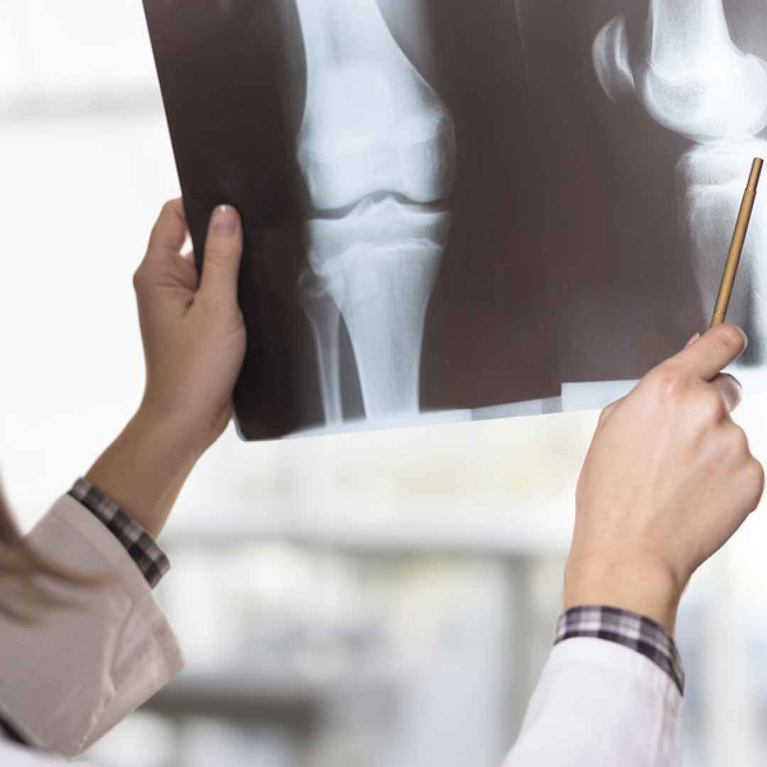 artrosi  ginocchio  salute
