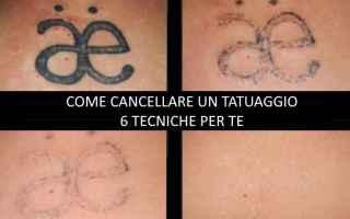 Bellezza: Tutti i metodi per rimuovere un tatuaggio