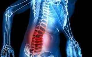 Salute: mal di schiena  medicina