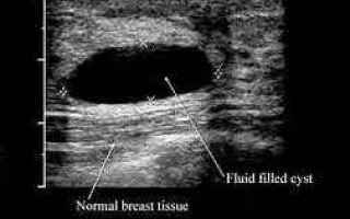 ecografia mammaria  fibroadenoma tumore
