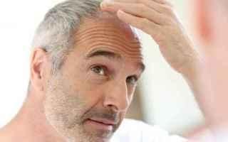 Bellezza: calvizie  alopecia