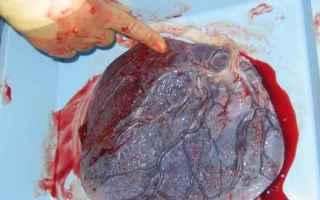 Medicina: Il Lotus birth, un parto davvero particolare