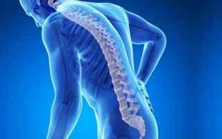 Alimentazione: osteoporosi  curare osteoporosi