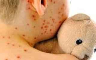 Salute: vaccino  morbillo  epidemia