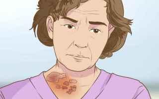 Medicina: fuoco di santantonio  herpes zoster