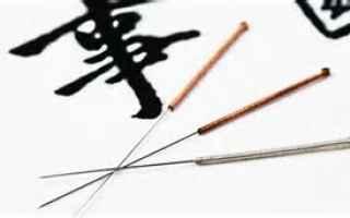 Salute: agopuntura  medicina  cina  salute