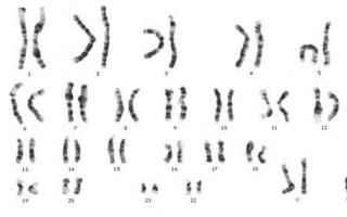 La sindrome di Klinefelter è una malattia genetica caratterizzata da unanomalia cromosomica in cui