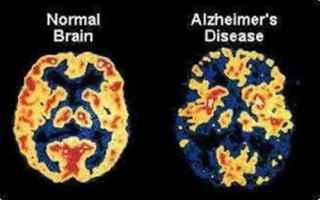 https://www.diggita.it/modules/auto_thumb/2017/06/13/1598455_Alzheimer_thumb.jpg