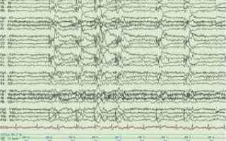 Neuropsicologia: epilessia  lettura  libri  malattia