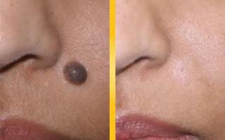 Bellezza: Rimuovere nei e siringomi dalla pelle