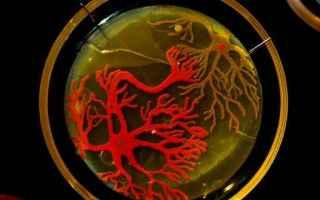 La piastra di Petri o capsula di Petri è un recipiente piatto di vetro o plastica, solitamente di f