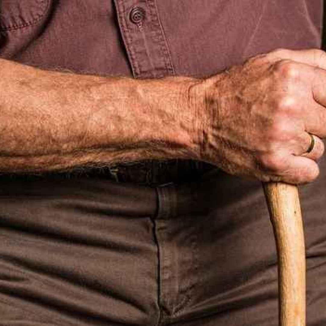 Curare le ragadi alle mani in maniera naturale