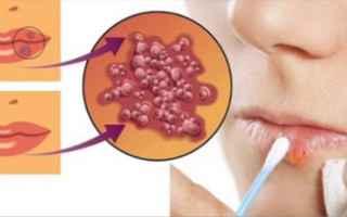 Medicina: herpes labiale  rimedi naturali