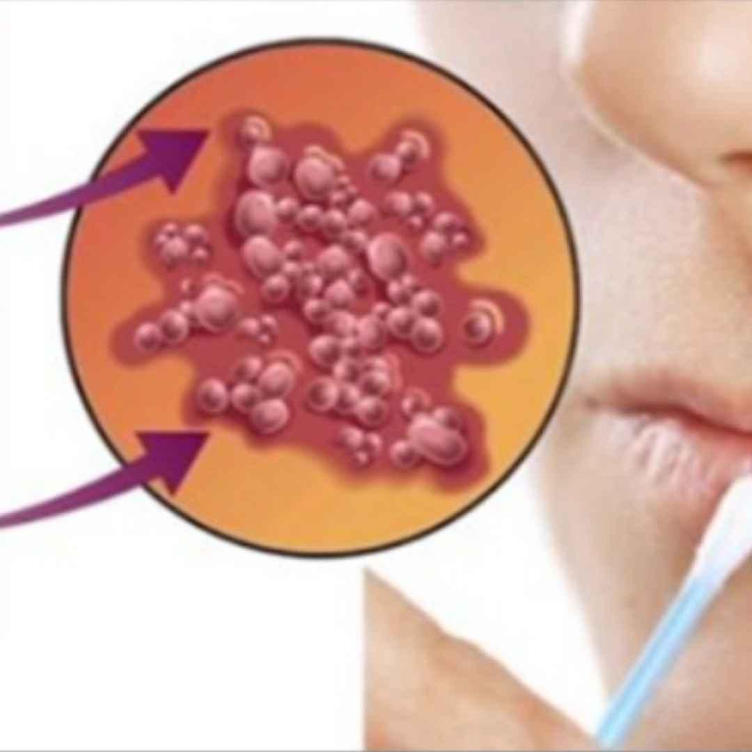 herpes labiale  rimedi naturali