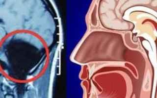 Medicina: le iene  agresti  cervelletto  donna