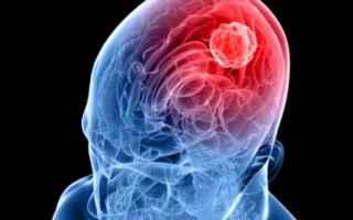 meningite  imola  emilia