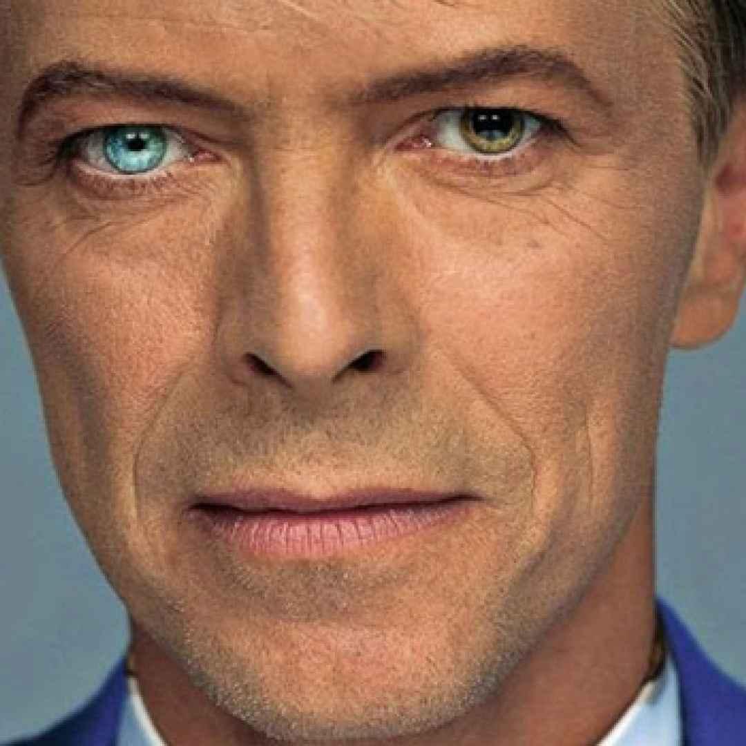Il mistero degli occhi di colore diverso di david bowie - Colore degli occhi diversi ...