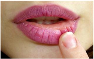 salute  labbra  screpolate  rimedi naturali  labbra screpolate