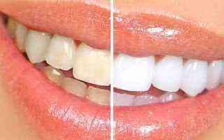Bellezza: Lo sbiancamento denti con perossido d