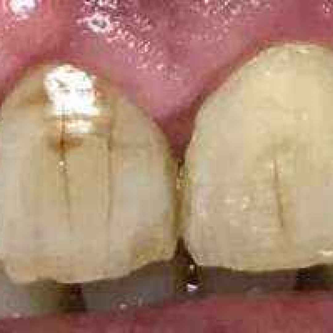 macchie  scure  nere  denti