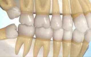 Salute: denti  giudizio  dente