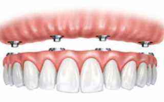 Medicina: protesi  dentarie