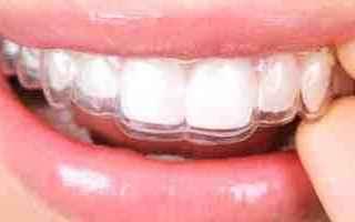 Bellezza: bite  placca  trasparente  denti