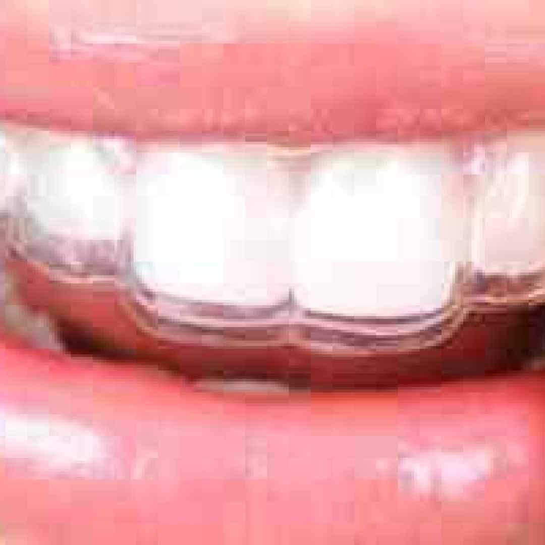 bite  placca  trasparente  denti