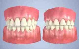 Salute: bruxismo  bruxista  bite  denti