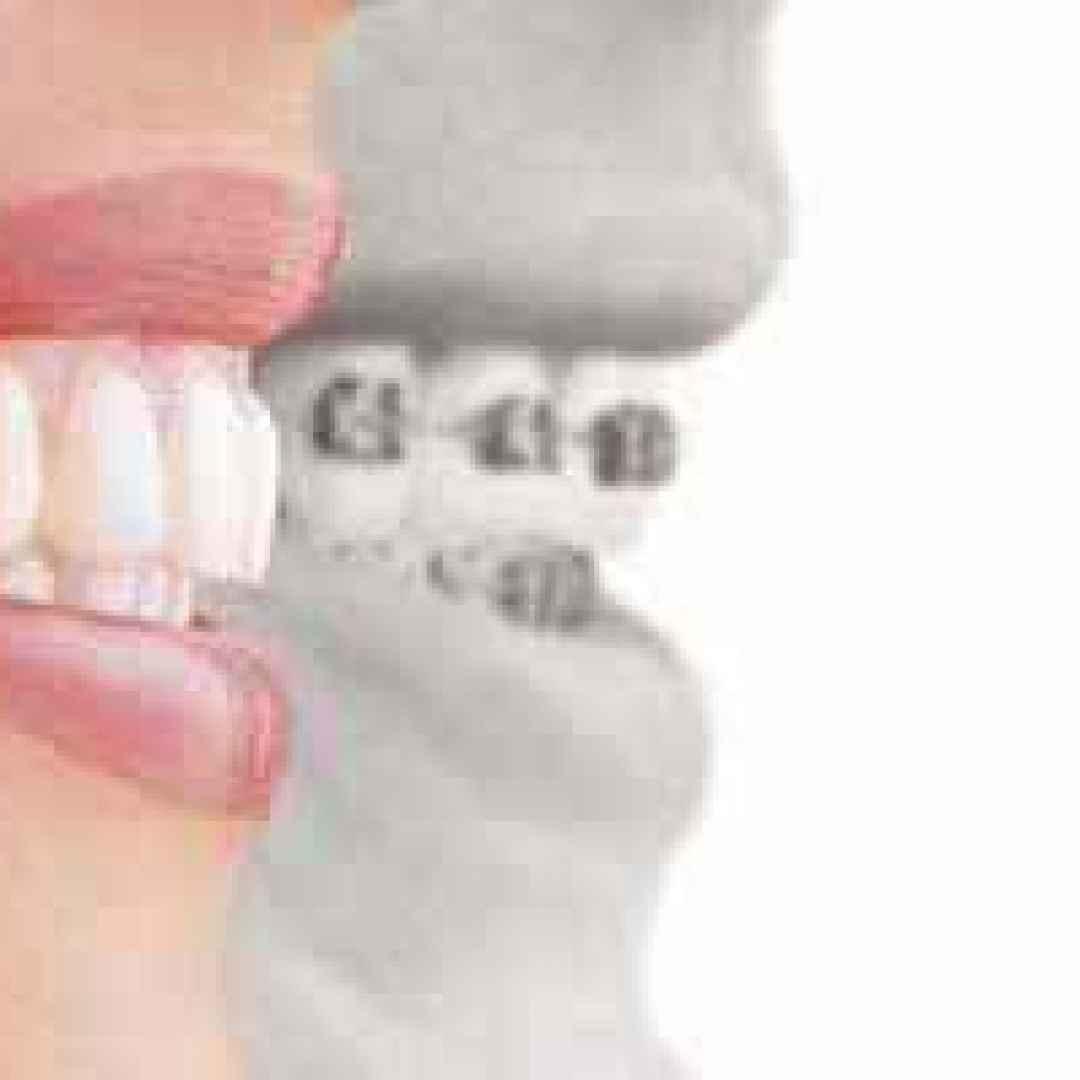 apparecchi  denti  ortodontici