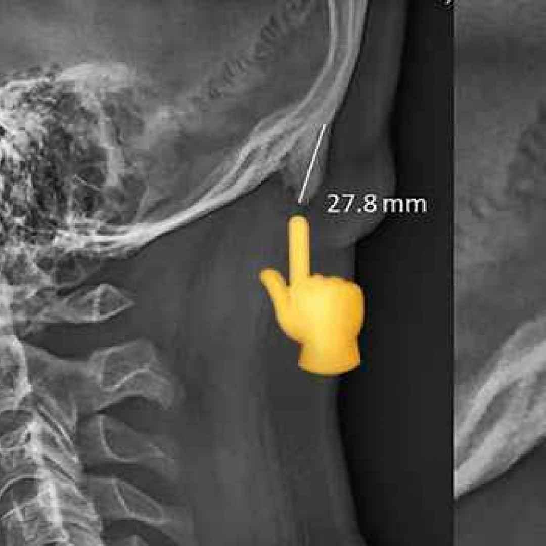 corno nel cranio  scienza  smartphone