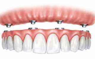 LOverdenture è una protesi mobile, totale o parziale, che viene fissata ad impianti dentali apposit