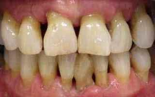 Non tutti sanno che uno dei problemi piu ricorrenti nei pazienti odontoiatrici e la Parodontite, ed