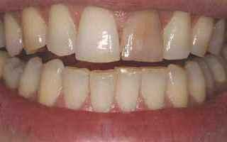 Bellezza: Il dente nero, dente scuro o dente necrotico