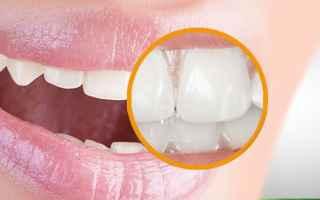 Bellezza: macchie bianche  denti  fluorosi
