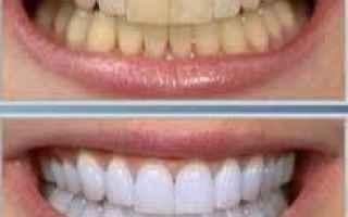 Salute: sbiancamento  denti  roma