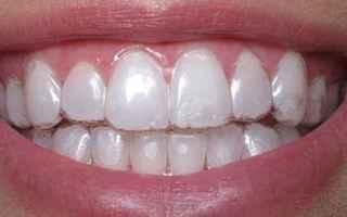 Salute: ortodonzia