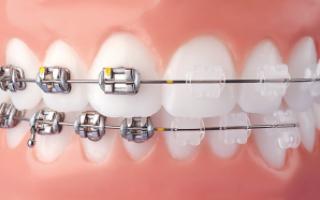 ortodonzia  apparecchio  fisso  mobile